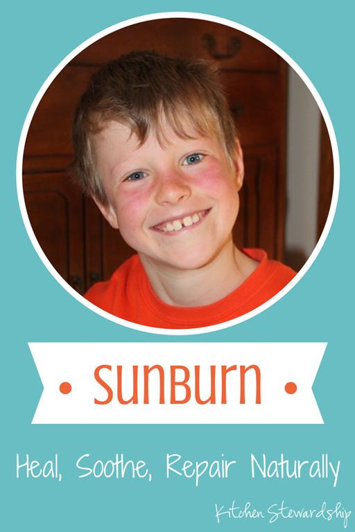 Treating a Sunburn Naturally
