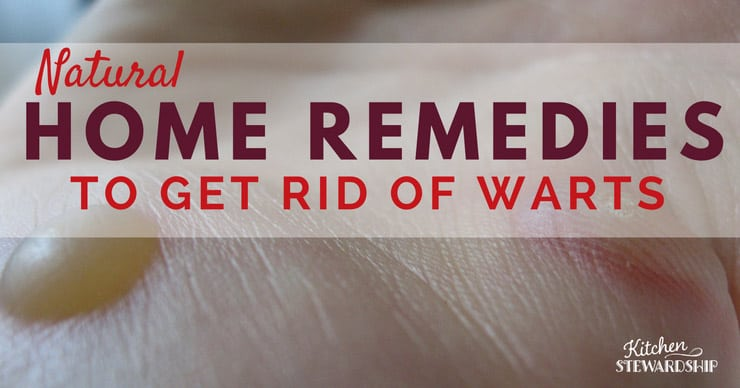 How to Get Rid of Warts, Naturally