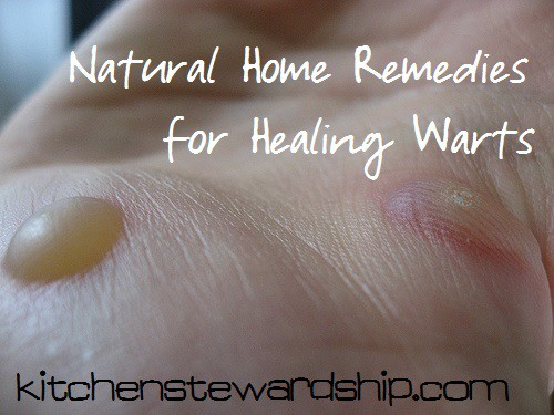 Home Remedy for Warts
