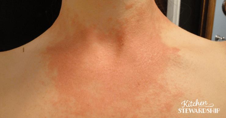 awful candida rash on neck