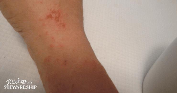 Candida rash on back of wrist