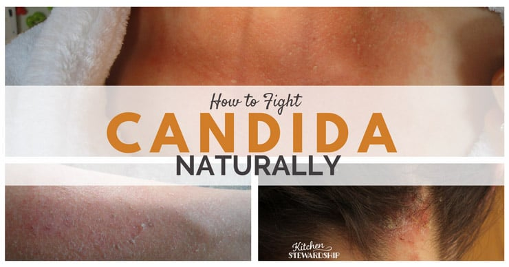 Facebook 3 Steps to Fighting Candida Naturally