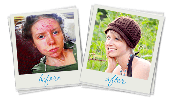 before and after adult acne