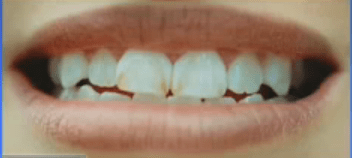 Dental fluorosis because of fluoridated water