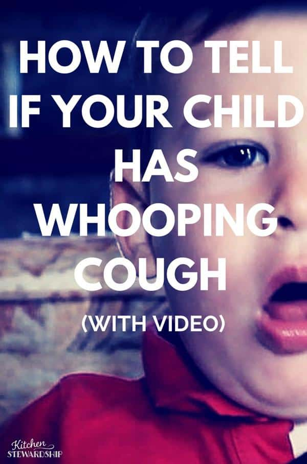 Signs and Symptoms of Whooping Cough in Kids
