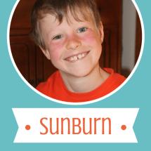 Monday Mission: So You Say You Got a Sunburn?
