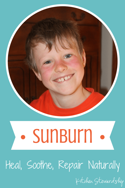 Treating a Sunburn Naturally: Heal and Soothe with One Easy Ingredient. Sunburns are sun damage, and you know once you get one that you've increased your risk of skin cancer. That stinks! How to relieve, heal and protect from sunburn, naturally.
