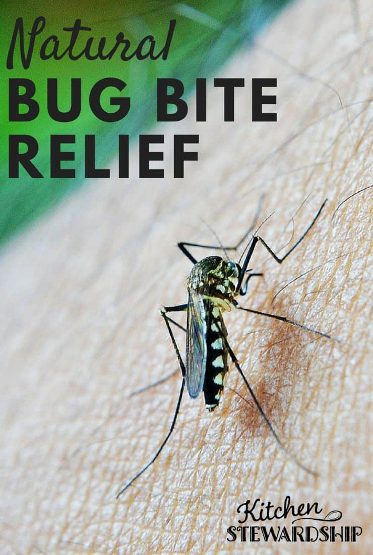Tons of Natural Remedies for Bug Bites. Reader recommended ways to stop bug bite itching!
