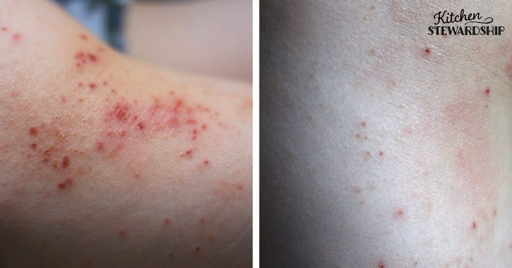 A before and after picture of treating eczema naturally.