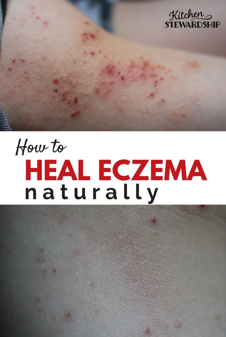 How to heal eczema naturally. Before and after pictures of treating eczema naturally.