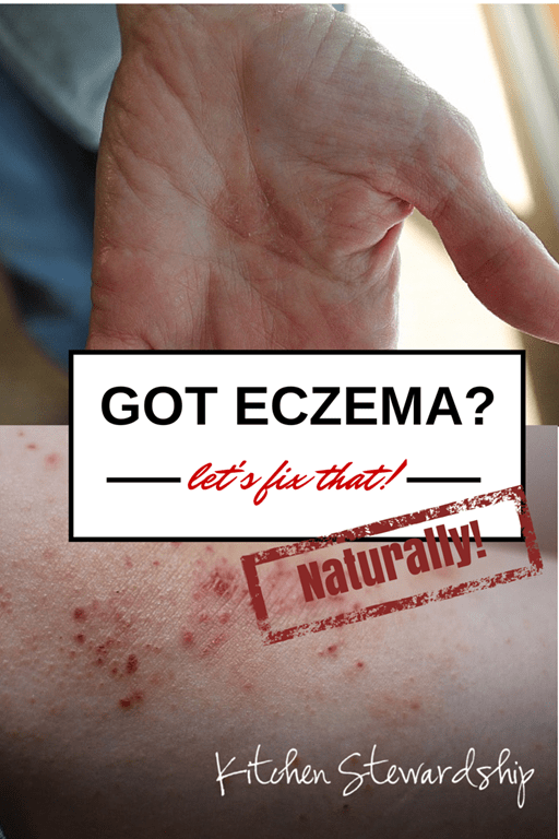 Natural Cure for Eczema