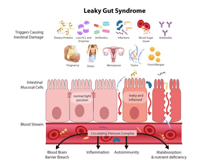 Showing what leaky gut syndrome looks like and the main triggers.