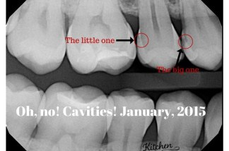 Discovering-cavities-in-my-mouth-January-2015.jpg