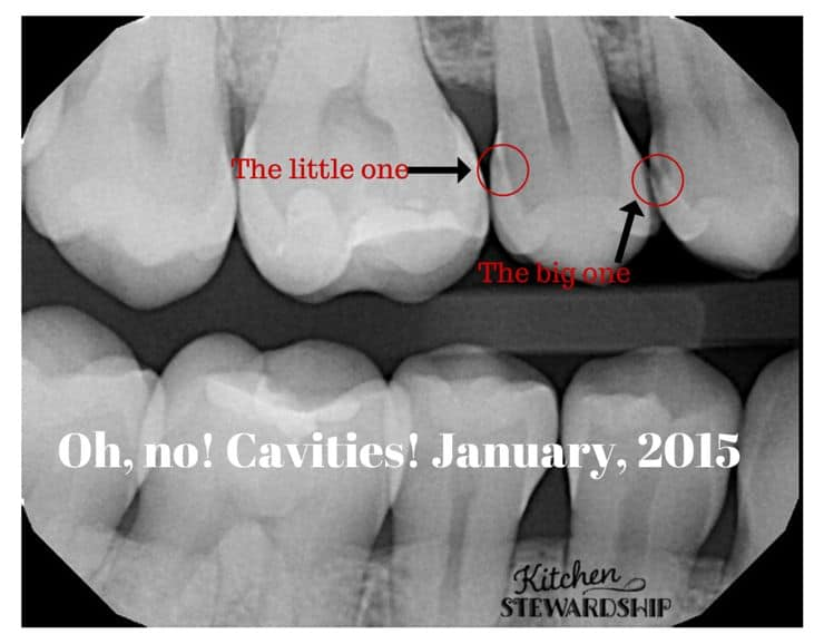 Discovering cavities in my mouth January