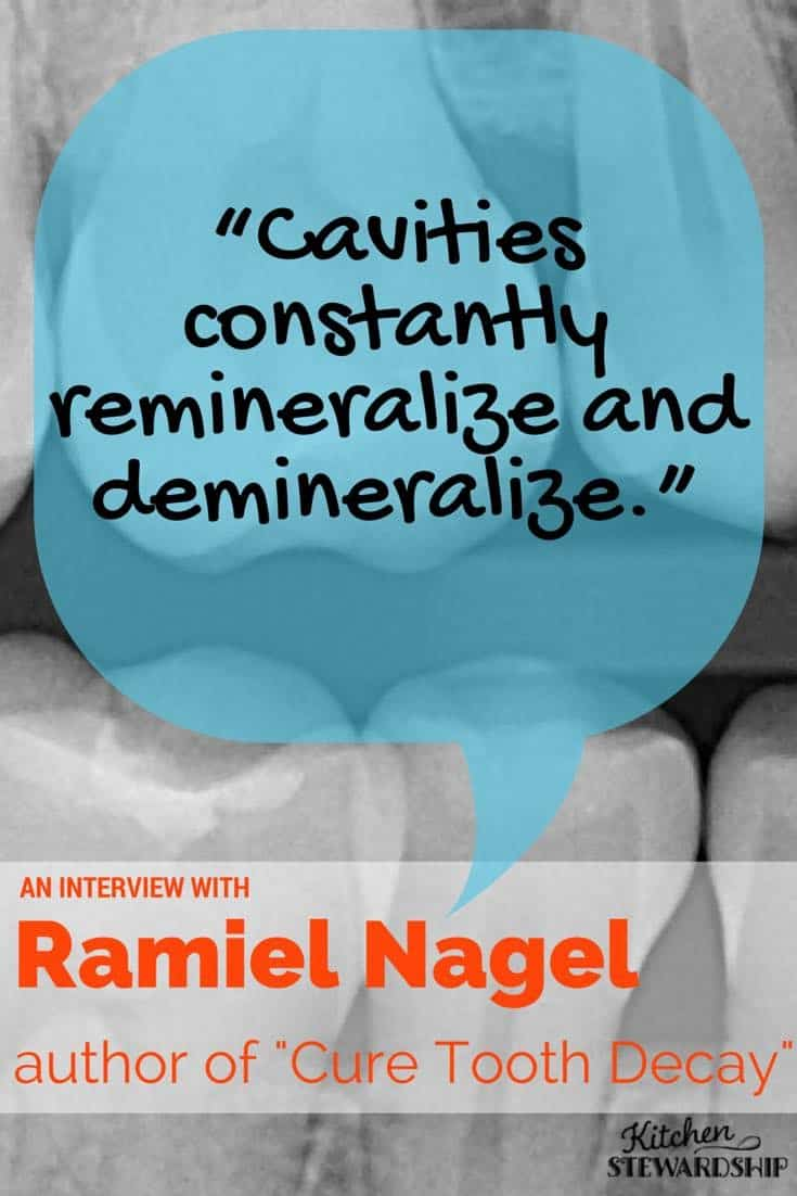 Cavities constantly remineralize and demineralize Ramiel Nagel author of Cure Tooth Decay