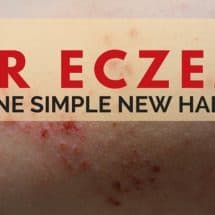 We Healed Our Eczema with one Simple New Habit