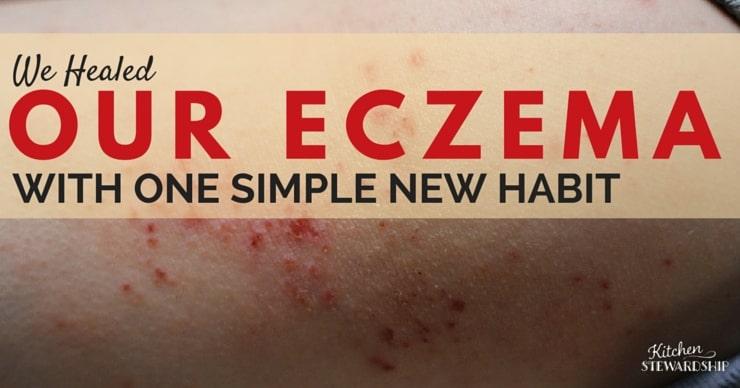 We Healed our Eczema with One Simple Moisturizing Habit