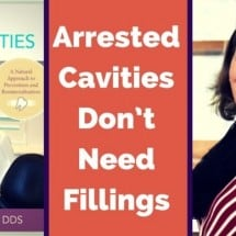 Some Cavities Don't Need Fillings–an Interview with Dr. Judene Benoit
