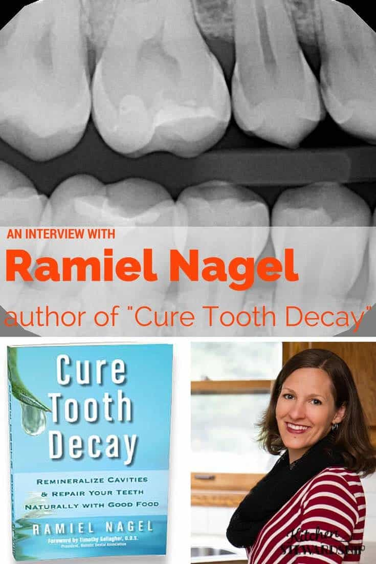 Interview with Ramiel Nagel author of Cure Tooth Decay