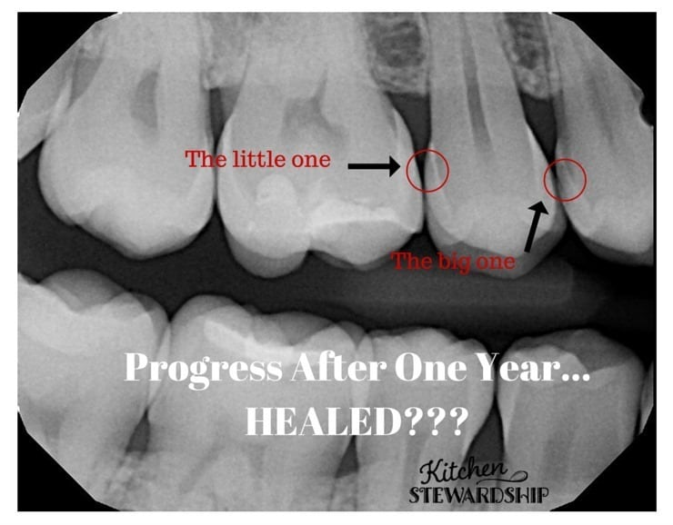 Cavity healing progress after one year it is possible to heal cavities and reverse tooth decay