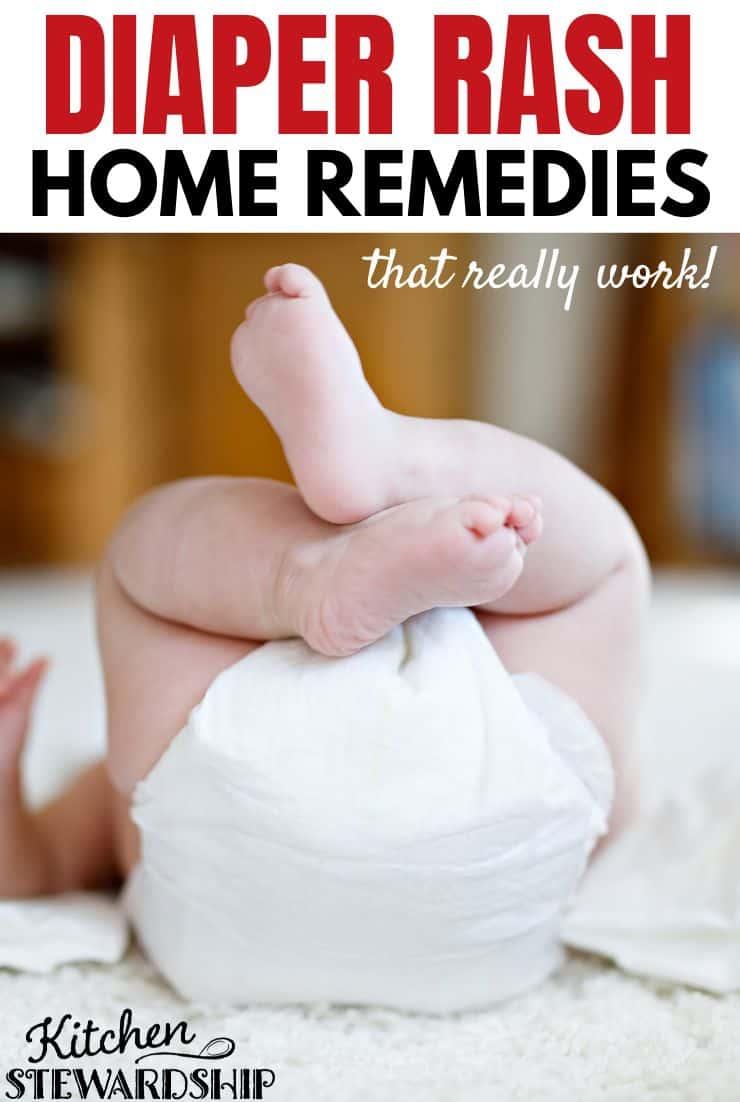 diaper rash home remedies