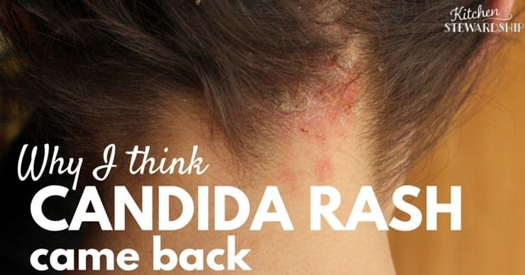 Why I think My Candida Rash Came Back