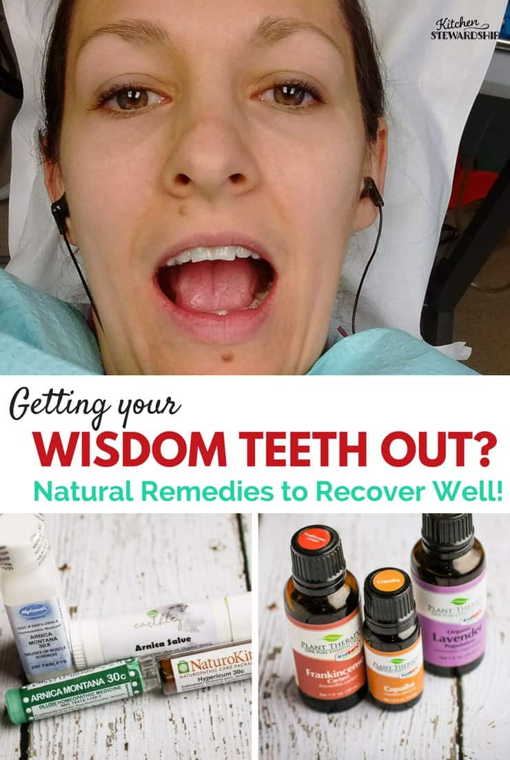 Essential oils, spices, homeopathy and salves are all part of natural pain relief options for wisdom teeth removal.