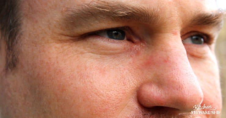 eczema by eye