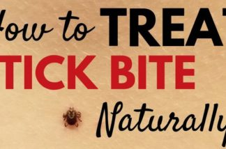 How to Treat a Tick Bite Naturally