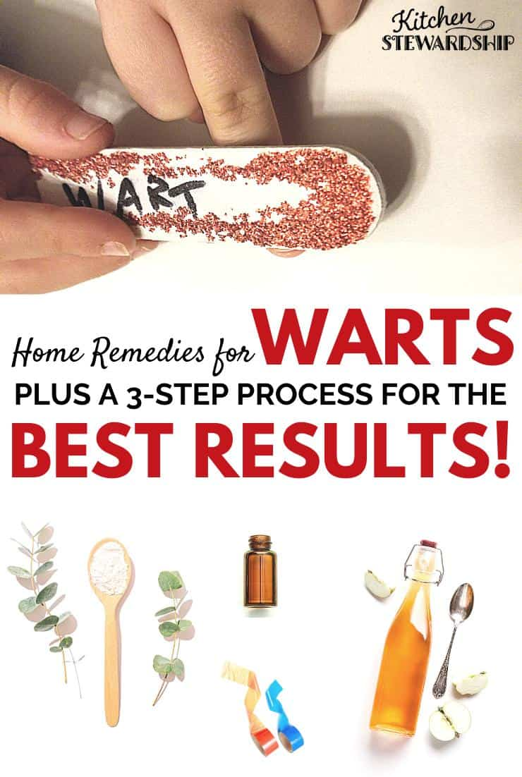Home remedies for warts plus a 3-step process for the best results. remove warts home remedy, warts remedies natural